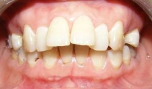 Làm gì khi bốn răng cửa bị hô