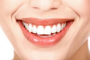 Cách làm răng trắng răng bằng công nghệ laser
