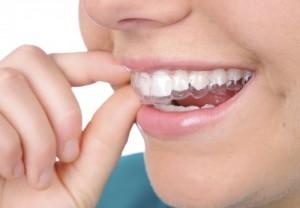 Niềng răng không cần gắn mắc cài cố định