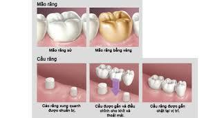 Phục hình răng bị mất với răng sứ