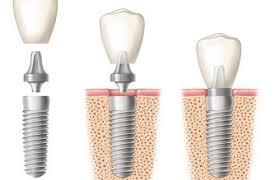Trồng răng implant có nguy hiểm không ?