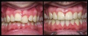 Nên niềng răng hay bọc sứ khi răng cửa mọc lệch?