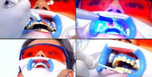 Phương pháp tẩy trắng răng hiện đại