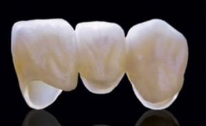 Loại răng sứ nào được bảo hành lâu nhất?