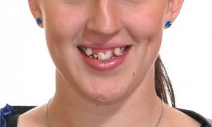 Niềng răng lệch lạc cho hàm răng đều đặn