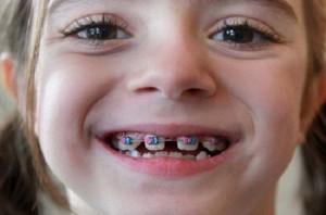 Loại mắc cài nào phù hợp để niềng răng trẻ em?