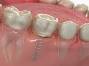 Cấy ghép implant vào thời điểm nào là hợp lý nhất?
