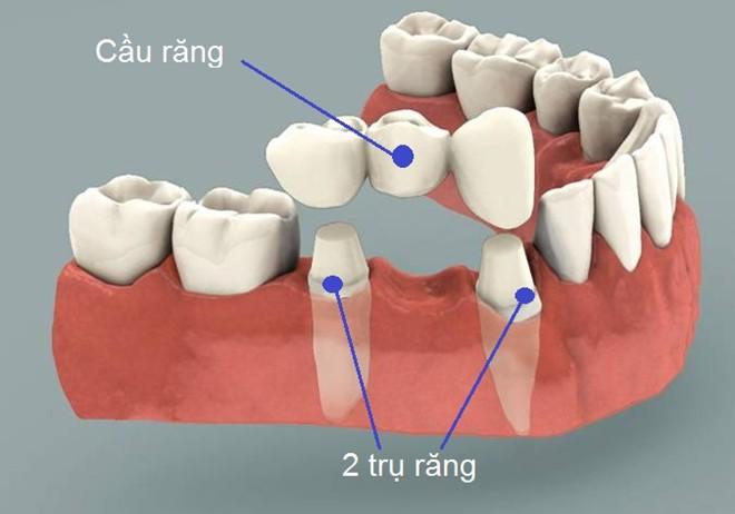Ưu điểm của cấy ghép Implant so với làm cầu răng