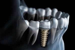 Ai không nên cấy ghép implant?