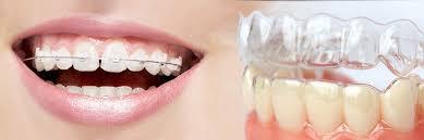 Niềng răng invisalign trong suốt thẩm mỹ