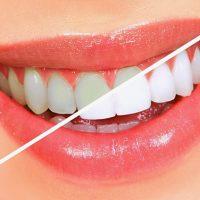 Cạo vôi răng có lợi hay hại cho răng?