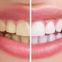Tẩy trắng răng có nguy hiểm không