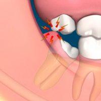 làm gì khi răng khôn hàm dưới mọc lệch