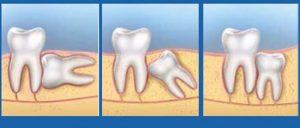 răng khôn mọc lệch phải làm sao
