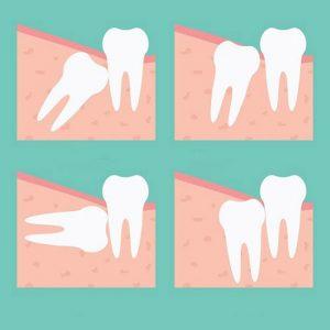 Nhổ răng khôn đau mấy ngày