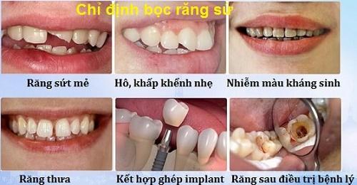 Bọc răng sứ thẩm mỹ mang nụ cười xinh đến bạn 3