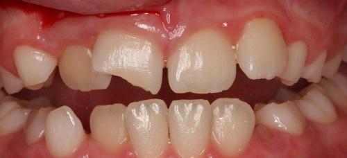 Răng sứ bị mòn - Nhận định từ chuyên gia nha khoa 2
