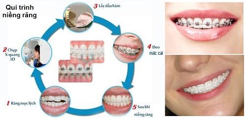 Có nên niềng răng không? Quy trình thực hiện an toàn 3