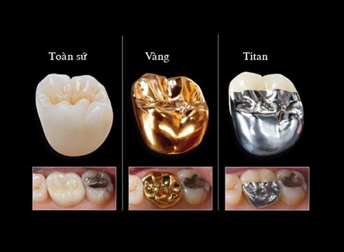 Bọc răng sứ kim loại có tốt không? Loại nào tốt nhất? 3