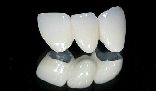 Bọc răng sứ kim loại thường - Các thông tin cơ bản 1