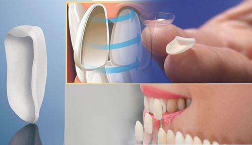 Dán răng sứ có bền không? Thực hiện khi nào? 1
