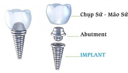 Giá răng sứ implant cho răng hàm như thế nào? 1