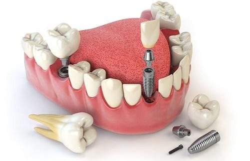 Giá răng sứ implant cho răng hàm như thế nào? 3