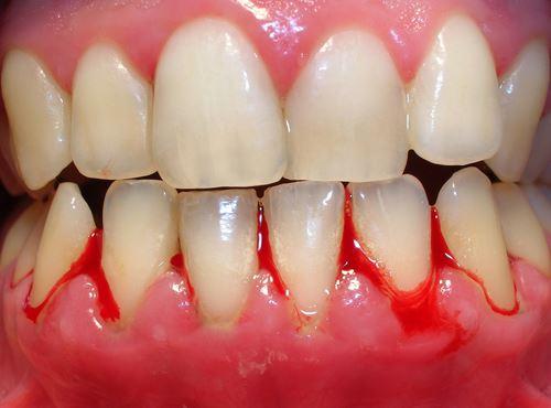 Lấy cao răng có đau hay không? Tìm hiểu cách thực hiện 2