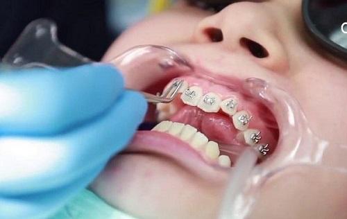 Niềng răng lúc nào đau nhất? Tìm hiểu quy trình 2